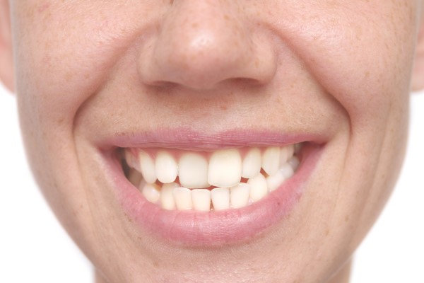 Cosmetic Dentistry Solutions For Misshapen Teeth